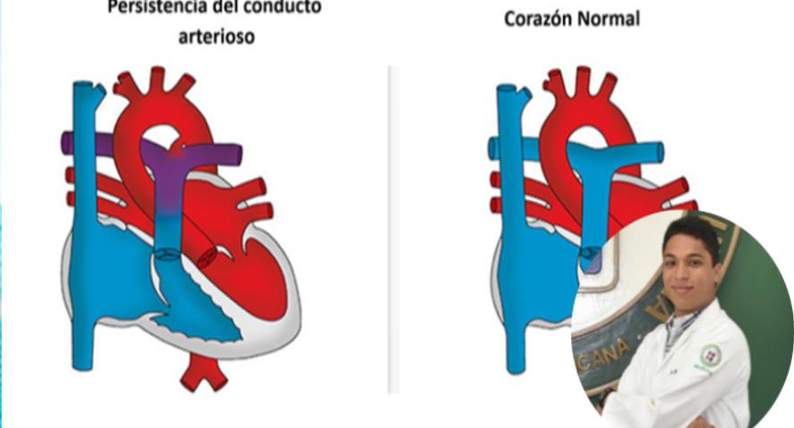 Persistencia del Conducto Arterioso