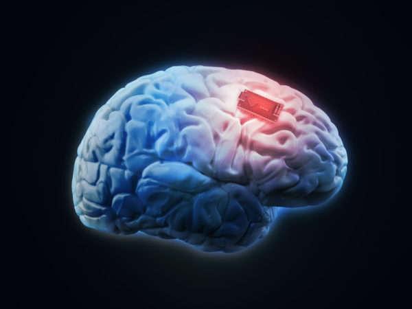 brain-implant-e1510818479272.jpg