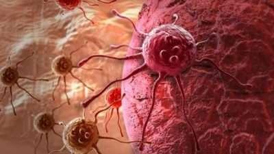 Годинава од рак ќе умрат повеќе од 9 милиони луѓе