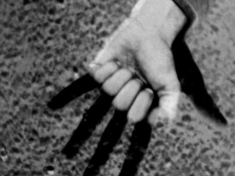 Etienne's Hand
