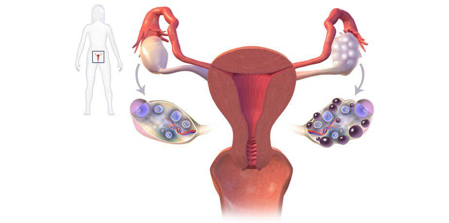 How To Get Rid Of Polycystic Ovary Syndrome Naturally