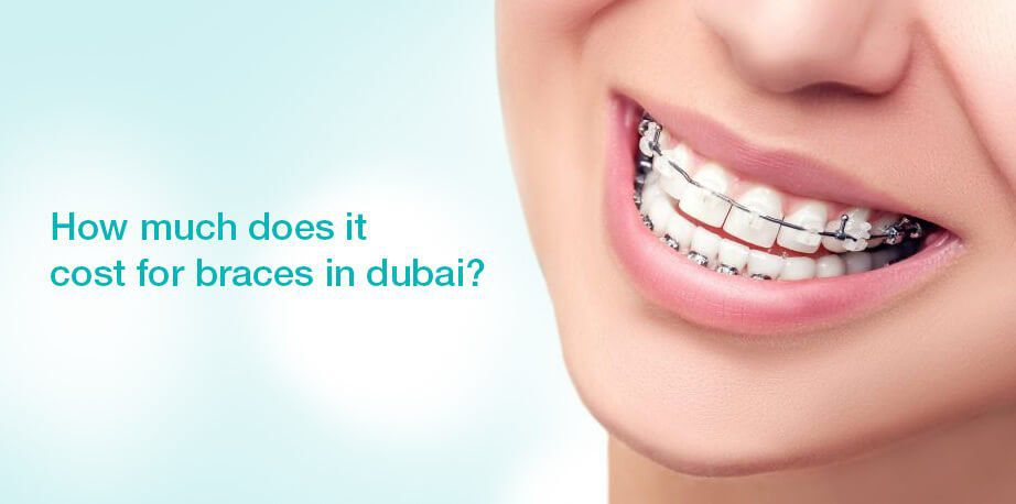 How Much Does It Cost For Braces In Dubai