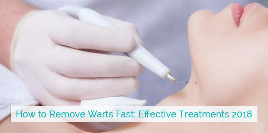 How to Remove Warts Fast12