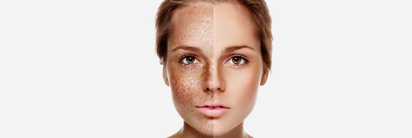 Skin Pigmentation Treatment in Dubai - Dark Spots Removal