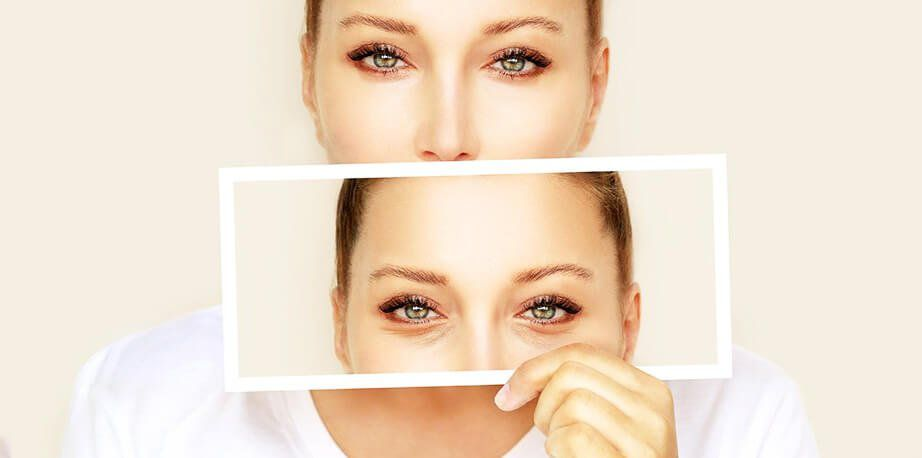 How Much Does Blepharoplasty Surgery