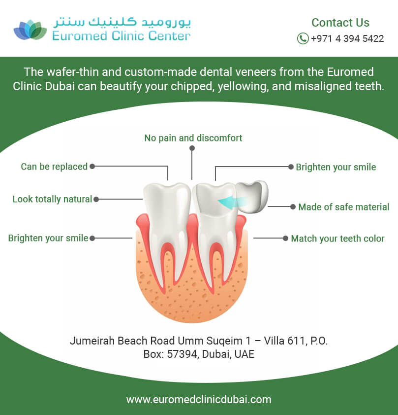 d7096b846e1 How Dental Veneers Treatment Works- Infographics | Euromed® Clinic