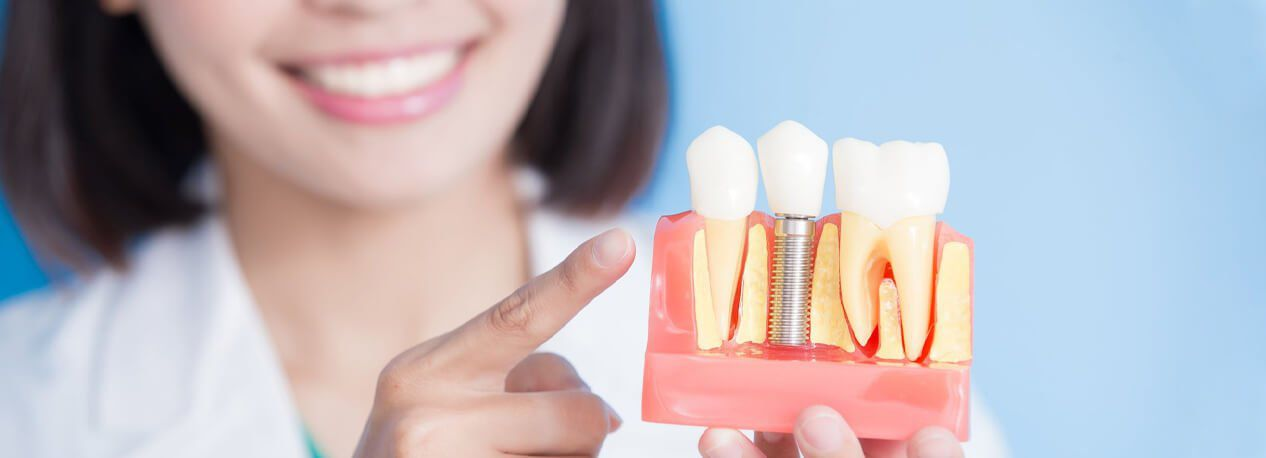 General Dentistry Services in Dubai | Euromed® Clinic