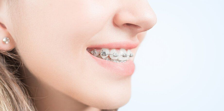 Whiten Teeth With Braces