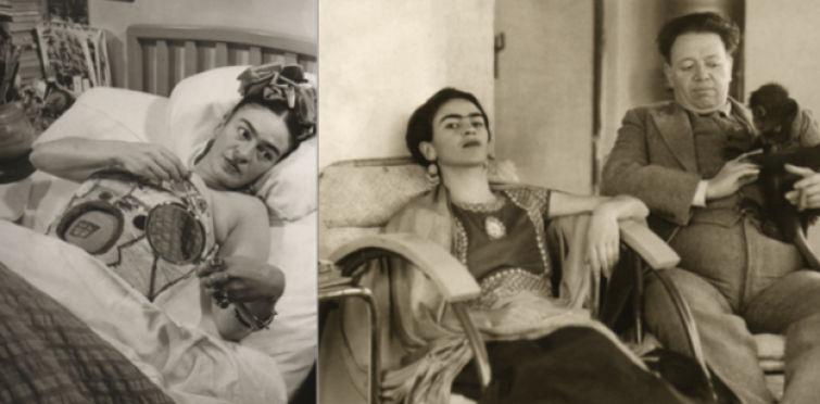 Em estado crítico de saúde, os médicos não encontraram outra saída a não ser amputar parte da perna direita de Frida Kahlo.