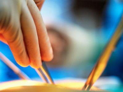 ידיים של מנתח במהלך ניתוח