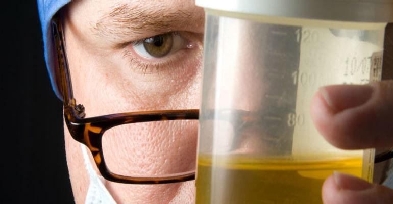 Cara mengatasi anyang-anyangan - test urine untuk memastikan penyebab anyang-anyangan