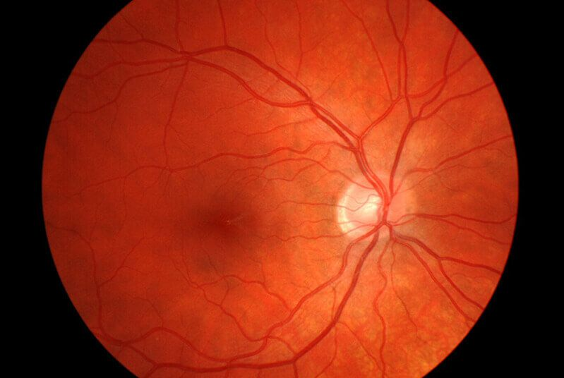 Healthy Retinal Scan
