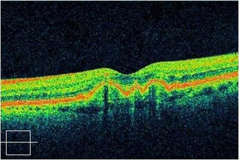 Photo of Unhealthy Retina (Macular Degeneration)
