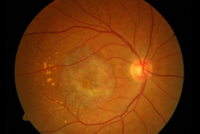 Scan of Unhealthy Retina (Macular Degeneration)