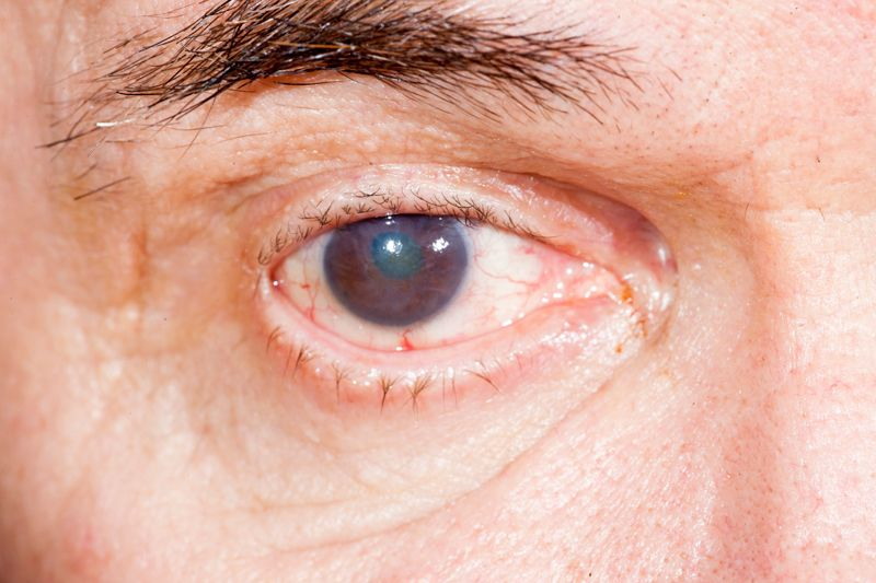 Cataracts can cause problems with night vision.