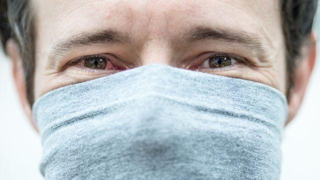 COVID-19 Conjunctivitis / Pink Eye
