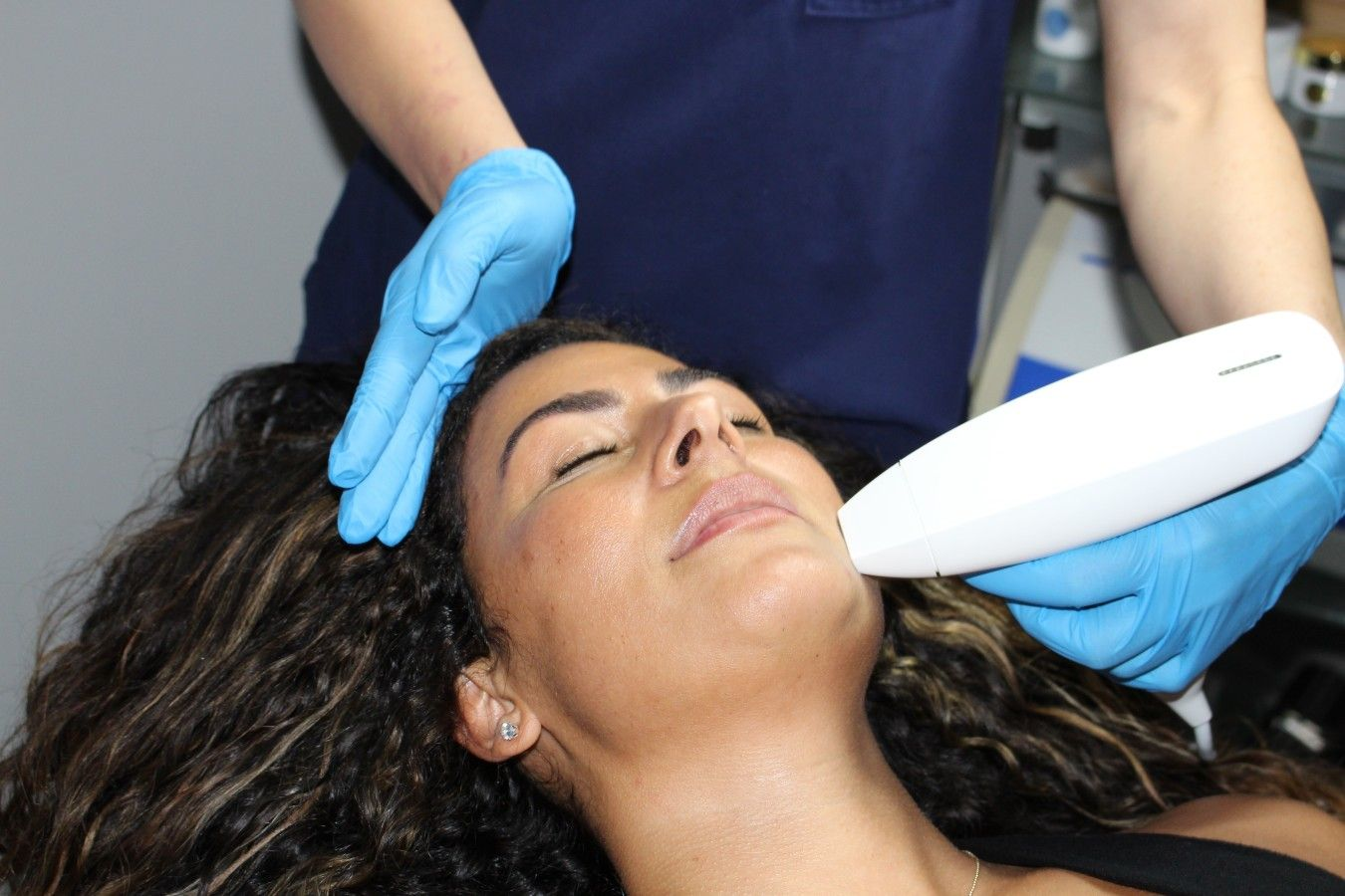 Venus Viva - Radiofrequency Resurfacing