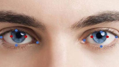 Eye Keypoint Annotation