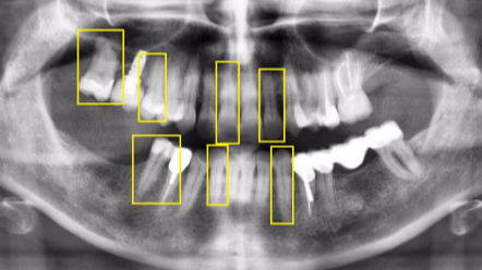 Teeth Annotation