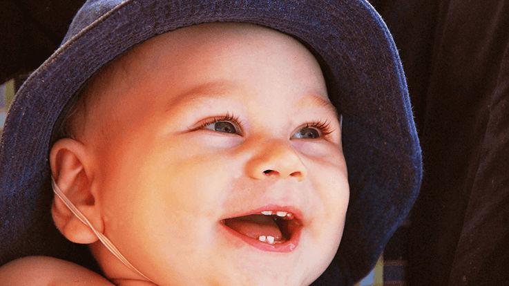 शिशु के दांत निकलने को आसान बनाने के तरीके