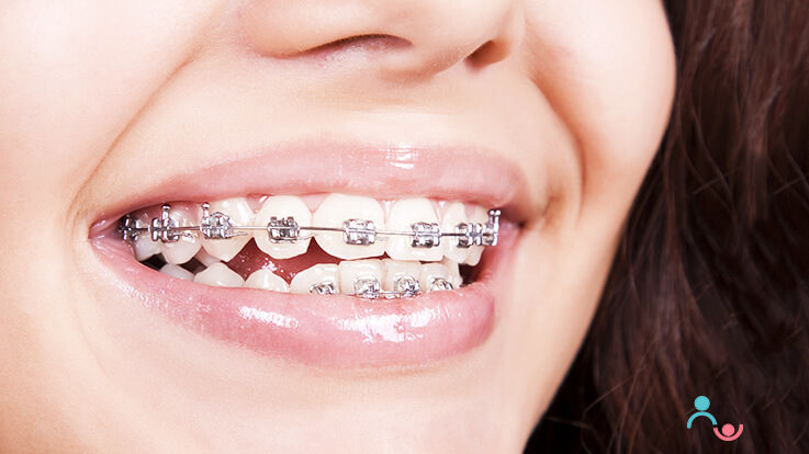 Know all about Dental Braces