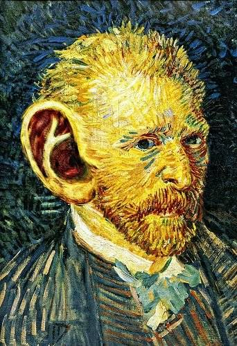 Perhaps Van Gogh should have tried microsuction london?a