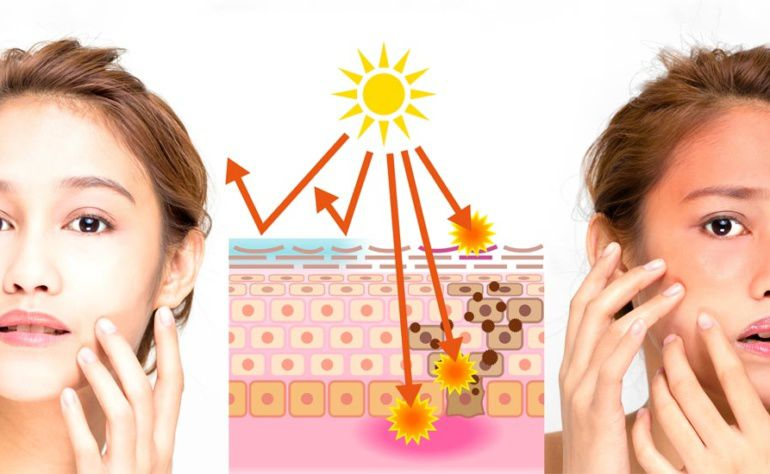 Sunburn causes and its impact on the Skin!