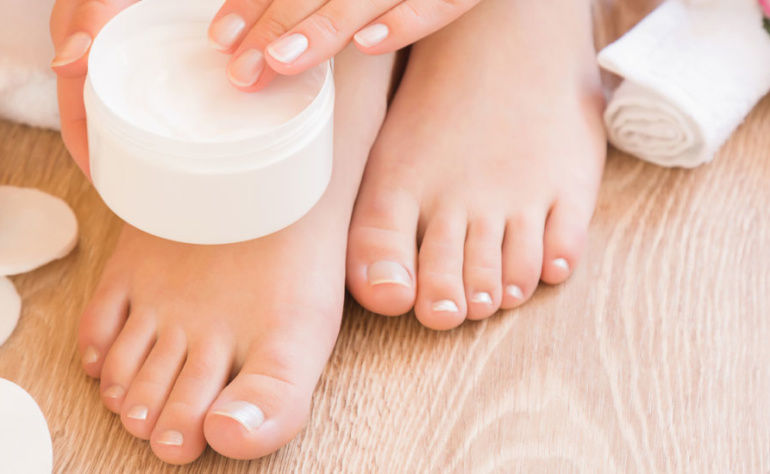 Cracked Heels : Causes & Easy Solution to heal cracked feet
