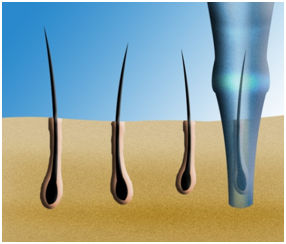 Precise Extraction of Micro Grafts