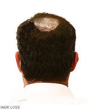 Hair Loss in Dubai