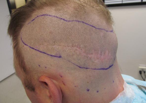 scar removal 3
