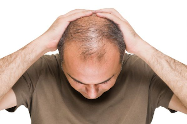 Hair Transplant for Baldness