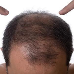 hair thinning 2
