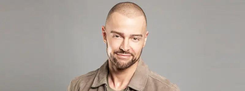 Joey Lawrence Hair Transplant
