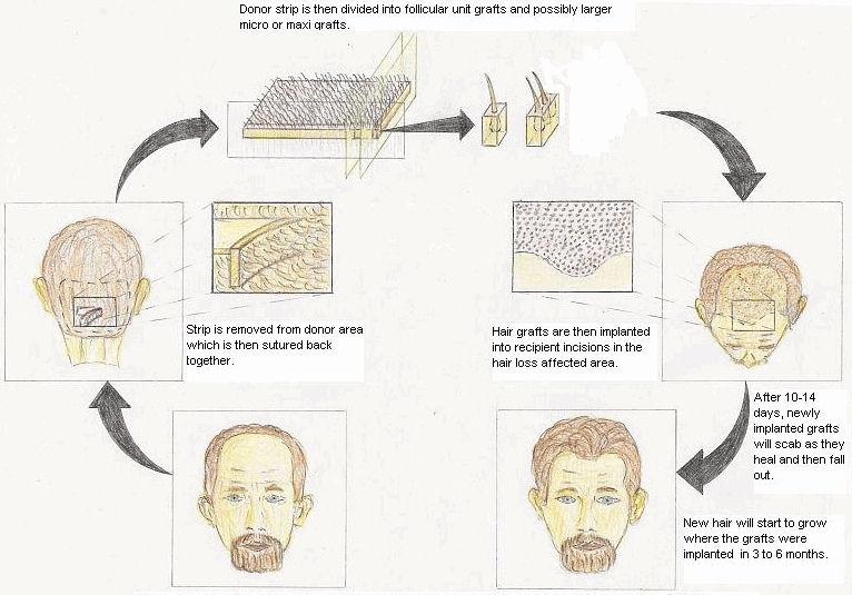 micro grafts hair transplant