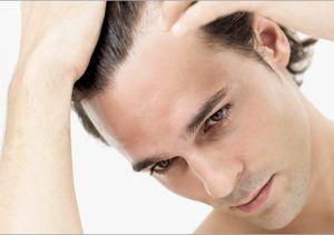 Amount of Hair Loss