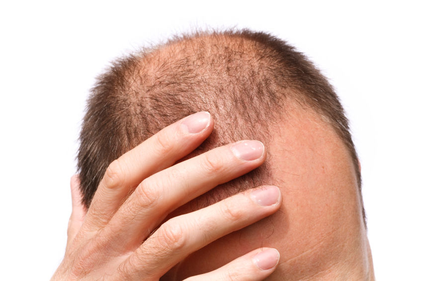 Understanding Hair Loss Signs & Symptoms