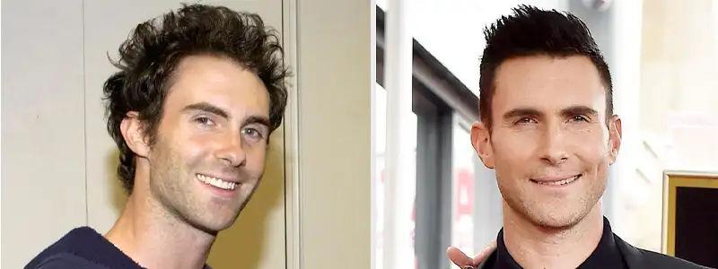 Rock Star Adam Levine Hair Transplant