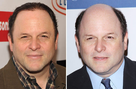 Jason Alexander Before After