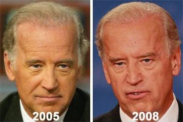 Joe Biden's Hair Transplant