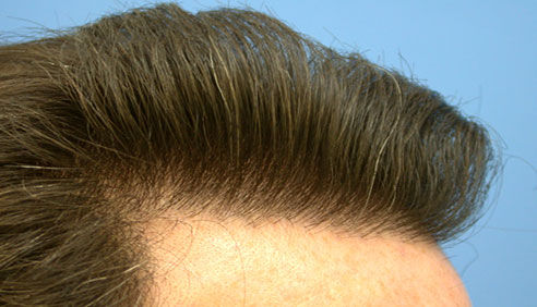 Choosing FUE Hair Transplant