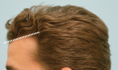 FUE Hair Restoration for Natural Hairline Recreation