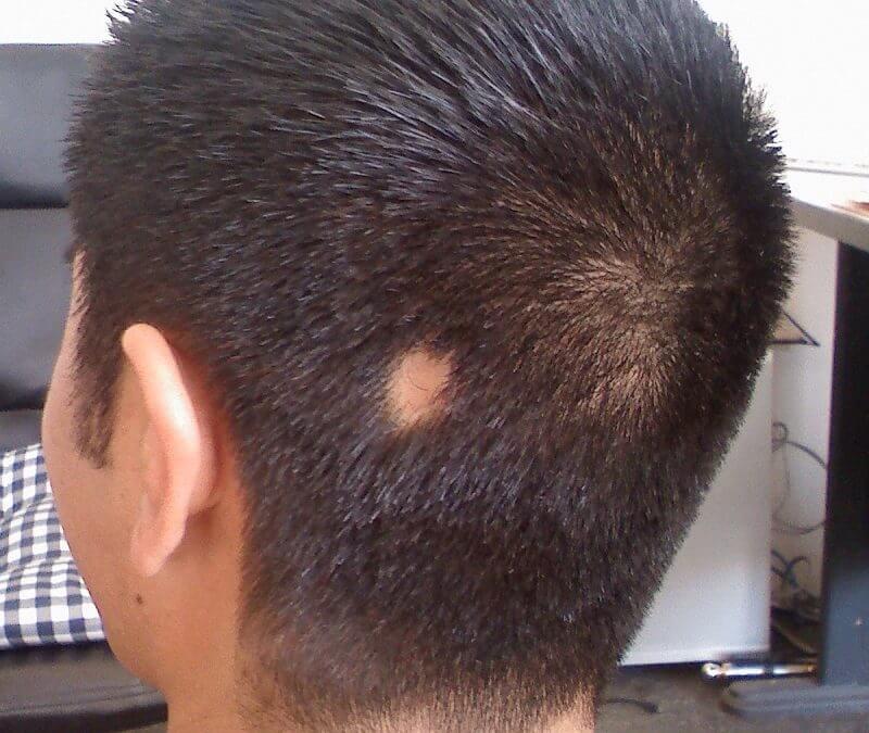 Alopecia Areata bald spots