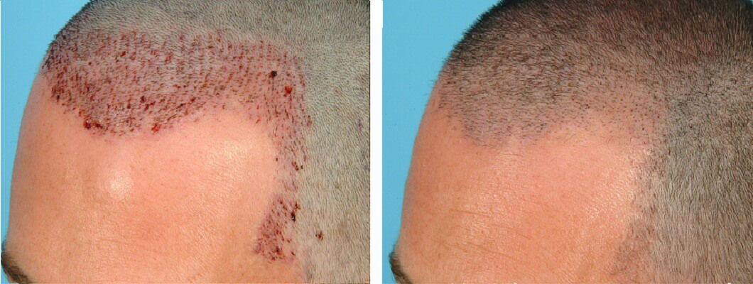 scabs after hair transplant