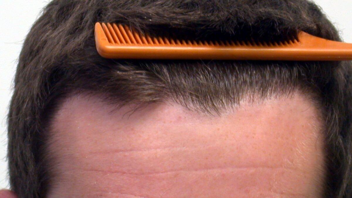 ACell hair loss treatment