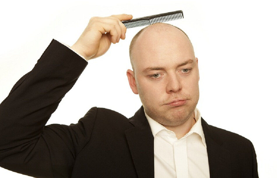 baldness facts and treatment
