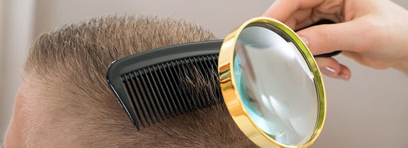 mesotherapy hairloss injections