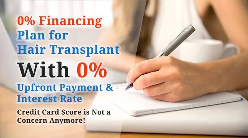 hair transplant financing