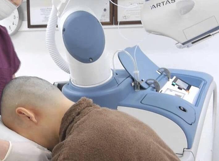 robotic fue hair transplant dubai