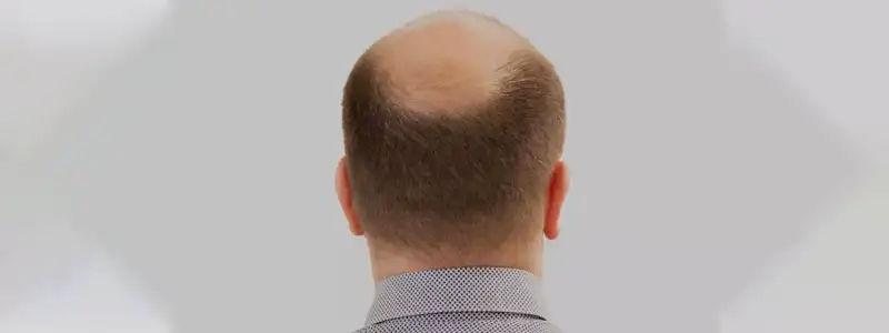 Alopecia treatment in Dubai